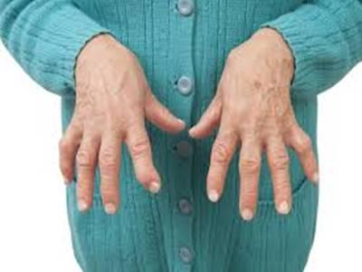 गठिया : इलाज़ है संभव-डॉ. के.के. सिंह