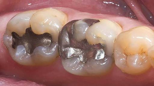 WHO states that even the smallest amount of amalgam is health damaging- Dr. Sukhmeet